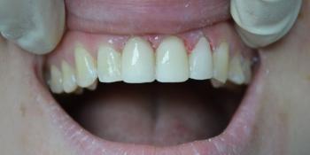 Клинический случай №1 фото после лечения