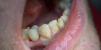 Клинический случай №2 фото после лечения